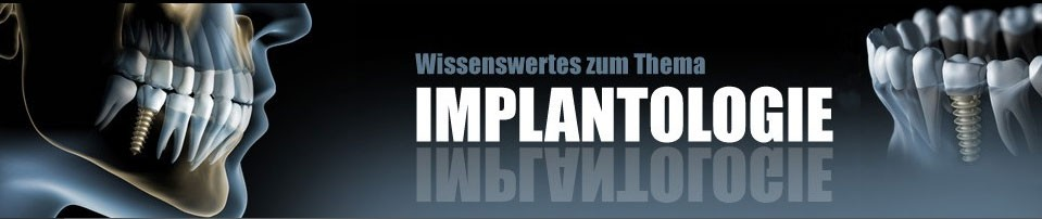 :: Implantologie – Forum – Informationen ::