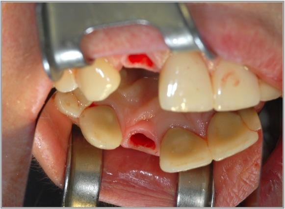 Katzen Zähne Ziehen Kosten